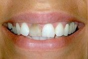 Closeup smile with dark front tooth