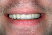 Closeup smile after tooth is replaced