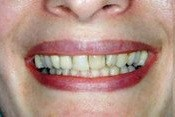 Closeup smile with dark colored front teeth