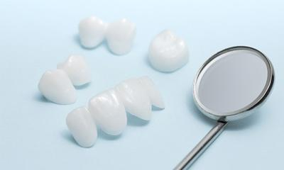 All-ceramic dental bridges.