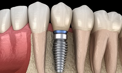 Model of dental implants in Wethersfield