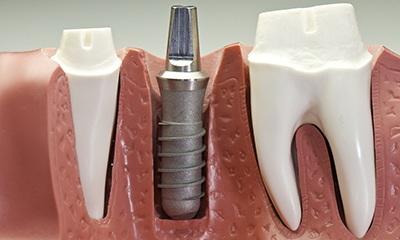 plastic model of titanium implant post.