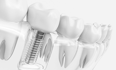 clear model of single dental implant.