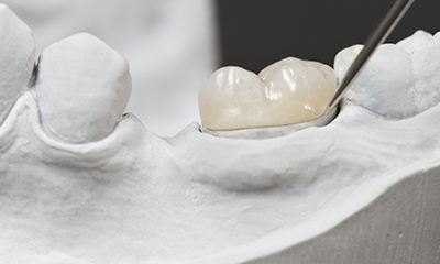Model of tooth with onlay
