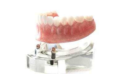 Implant-retained dentures in Wethersfield
