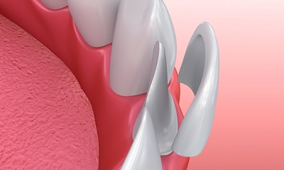 computer model of porcelain veneers fitting over teeth