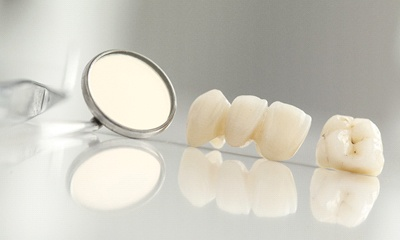 dental crown and bridge sitting next to a dental mirror